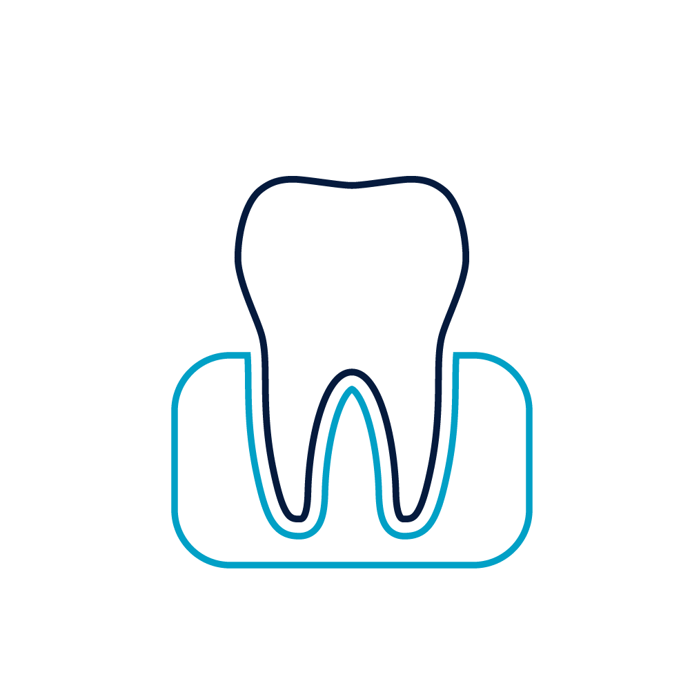 Parodontose Kopie 3